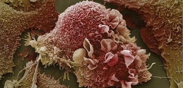 turk bilim adamindan kanser hucresine son13813320730 h1083548 - Kanser, d�nya genelinde art�yor!